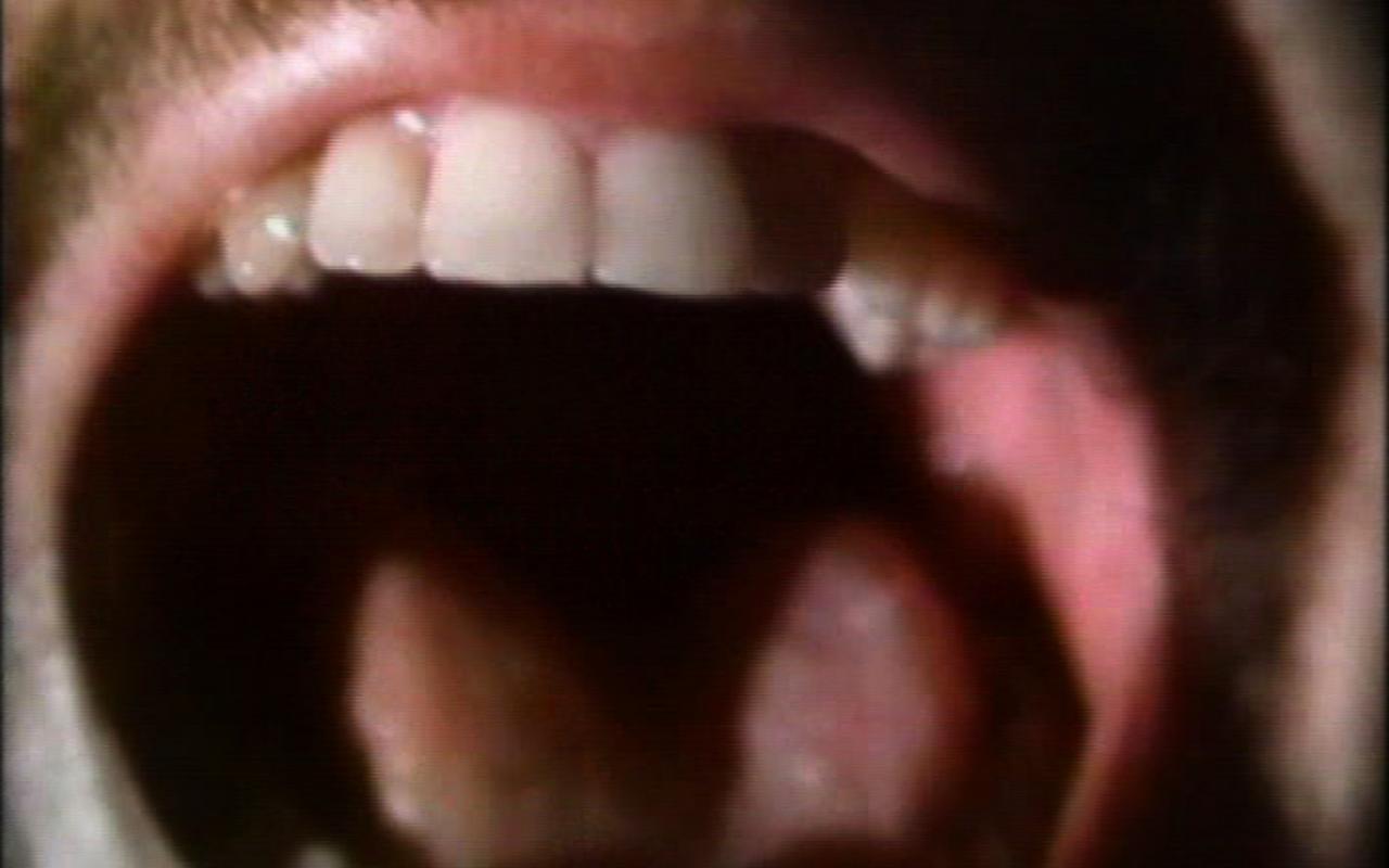Werk - The Space Between the Teeth
