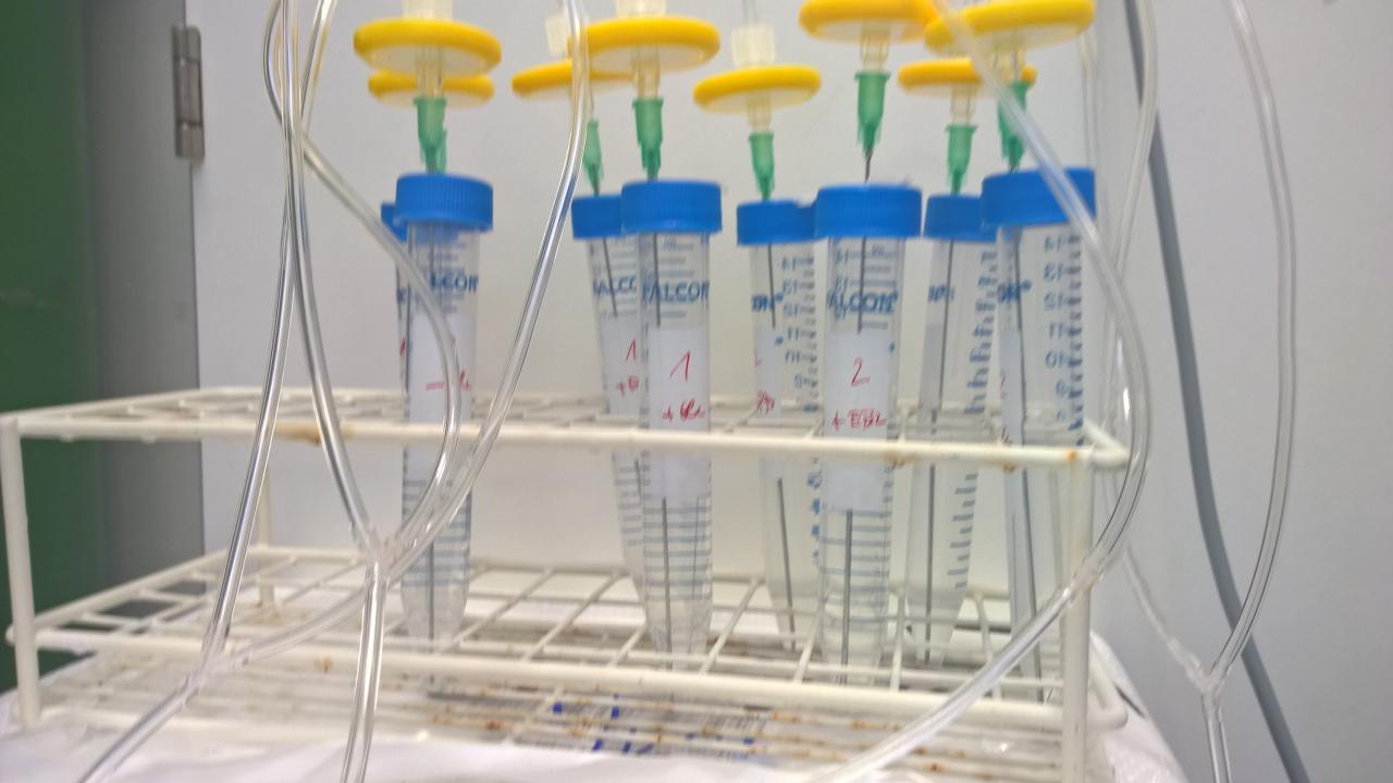 Mehrere Phiolen mit Flüssigkeit gefüllt