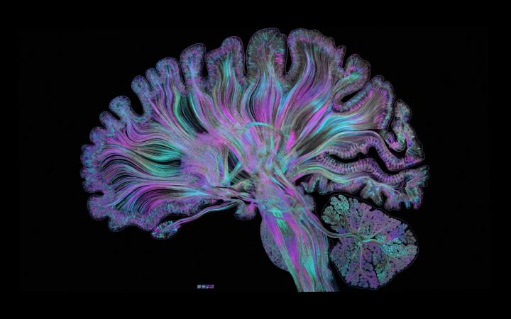 Farbige Darstellung eines Gehirns