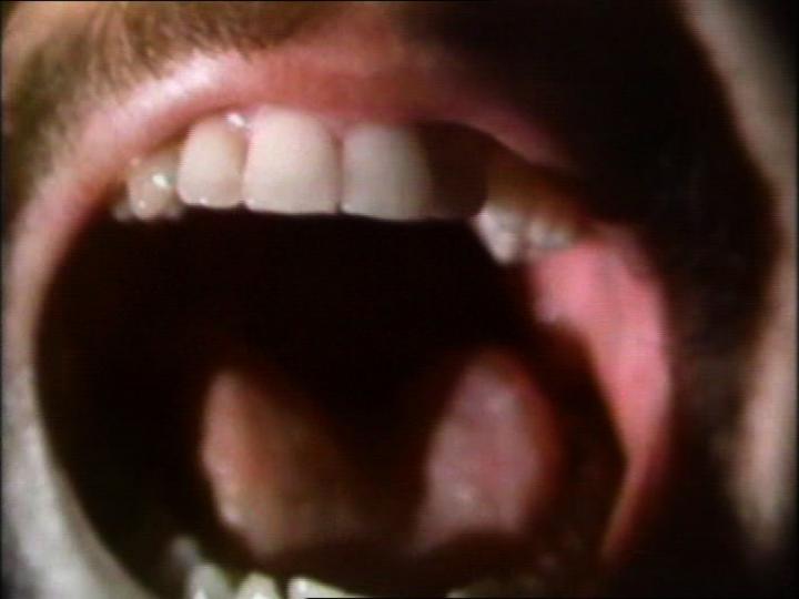 The Space Between the Teeth